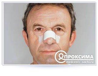 Показание к септопластике - искривление носовой перегородки
